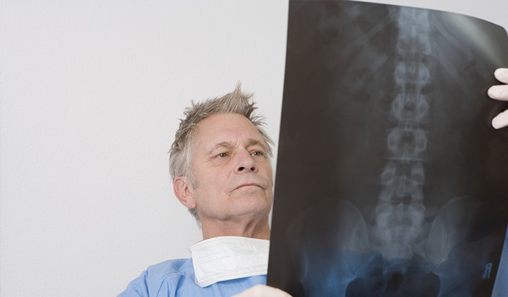 Atlanta Spinal Cord Injury Lawyers | Back Injury in Georgia