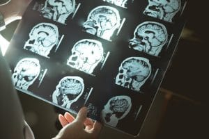 Increased Risk of Parkinson's Disease After Mild Traumatic Brain Injury, According to New Study
