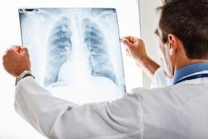 When Pneumonia Is Misdiagnosed